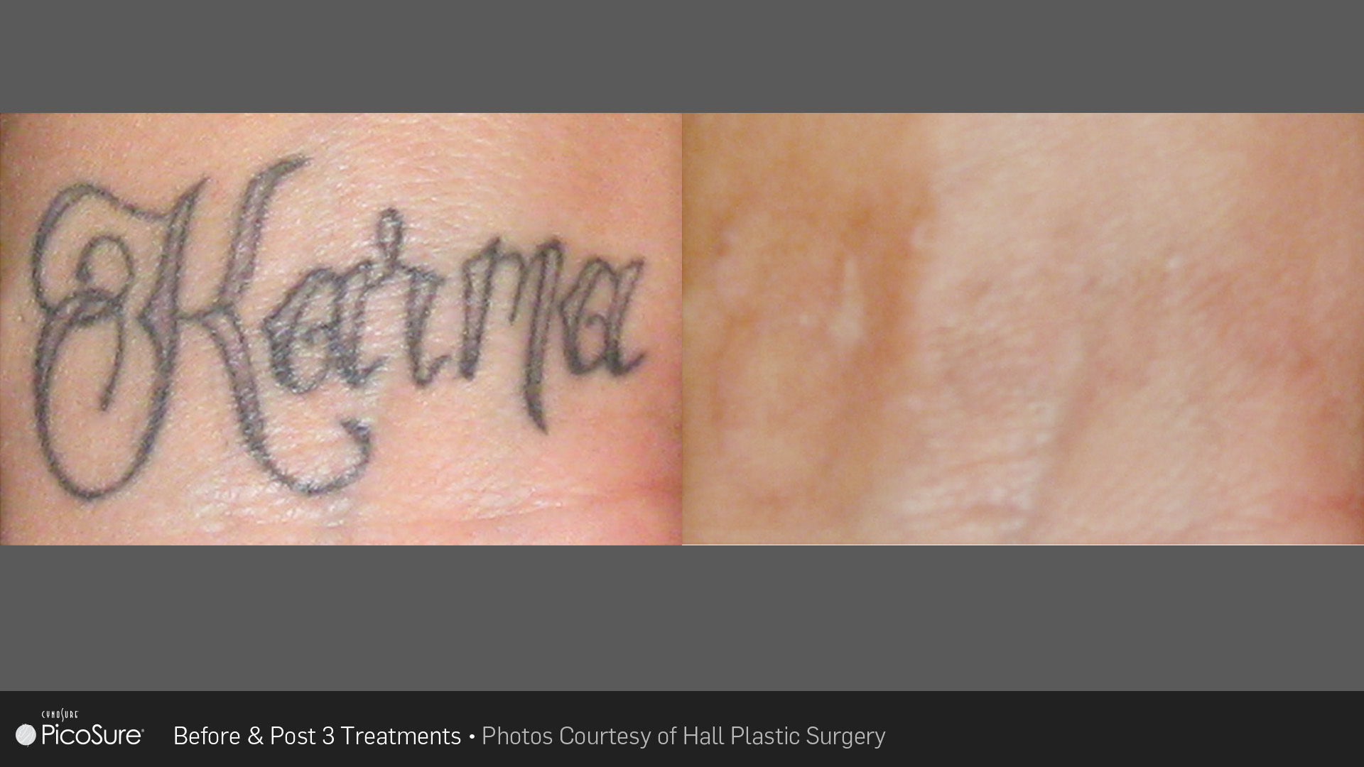 Laser Tattoo Removal – Lawrence Fortier MD
